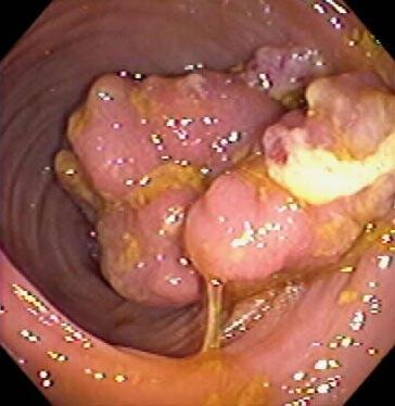 colorectal cancer malignant polyp