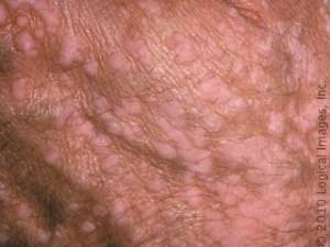 Human Papillomavirus (hpv) In Men HPV Infection R...