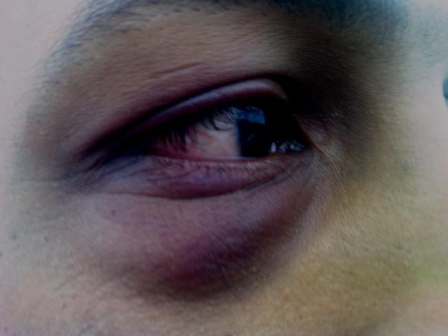 Blackeye_pigmentation