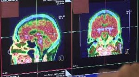 brain II