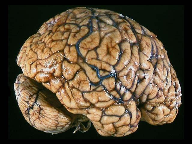 brain, police