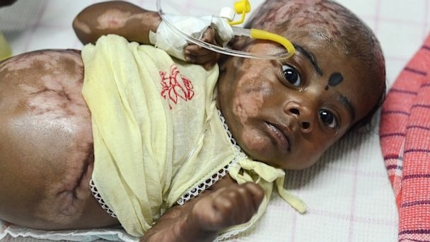 Indian Baby Burned
