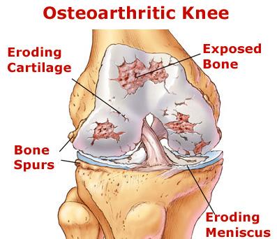 Osteoarthritic Knee Joint Image