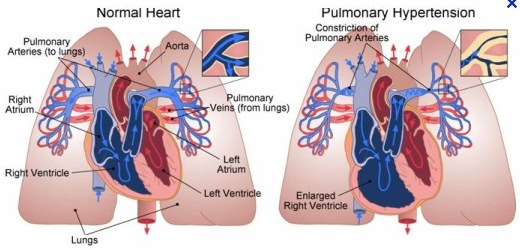 Pulmonary Hypertension image