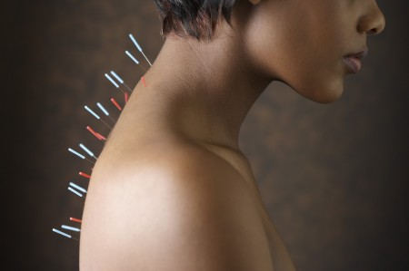 Acupuncture For Realignment