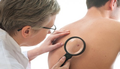 Scientist Claim New Drug Can Cure Skin Cancer