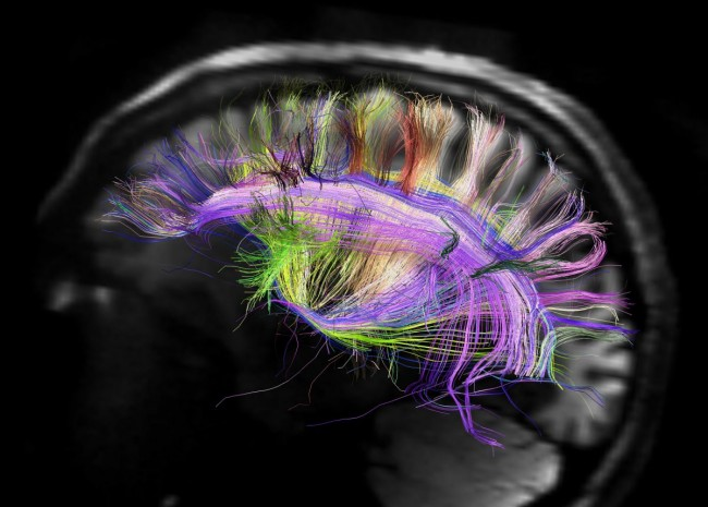Mysteries of imagination traced in human brain