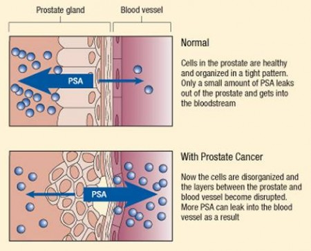 Prostate specific antigen released into bloodstream during cancer