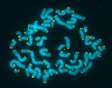 Telomeres highlighted in yellow on chromosomes