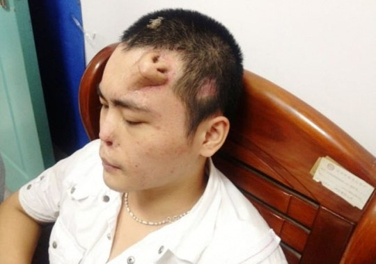 Breaking News - Surgeons Will Soon Transplant Nose Growing on Man's Forehead