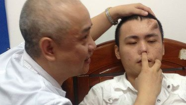 Breaking News -Surgeons Will Soon Transplant Nose Growing on Man's Forehead