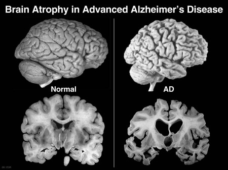 Alzheimer's-Complete Cure May Be on the Horizon (Video)
