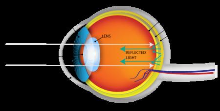 Eye Diagram To Color
