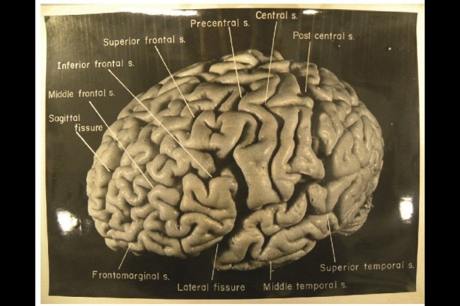 Einstein's brain was recovered following his death