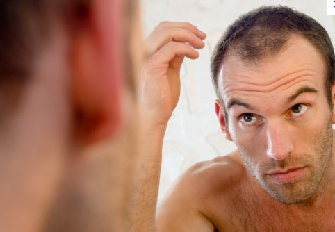Baldness Cure on the Horizon?