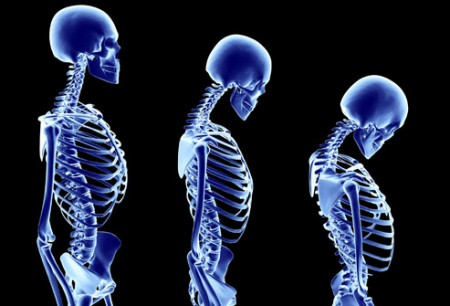 smoking cessation helps prevent osteoporosis