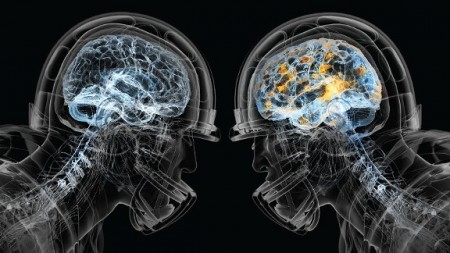 Football, brain damage