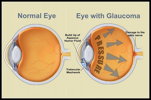 Glaucoma Risk Doubled When Taking Birth Control Pills