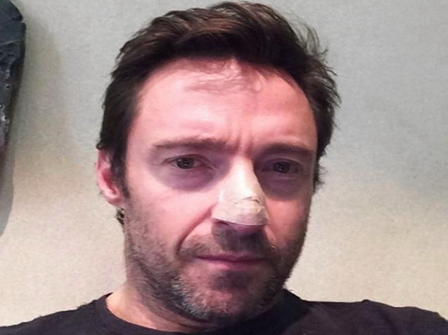 Hugh Jackman Has Treatment for Skin Cancer