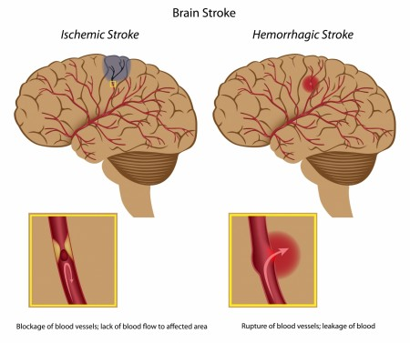 Two types of stroke