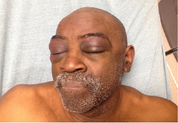 Officers beat deaf man because he could not hear their orders