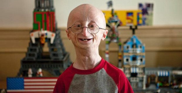 Sam Berns dies of progeria, aged 17.
