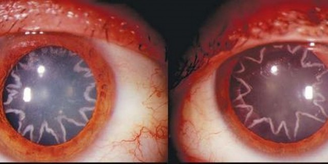 Star-Shaped Cataracts Caused by an Electrical Accident