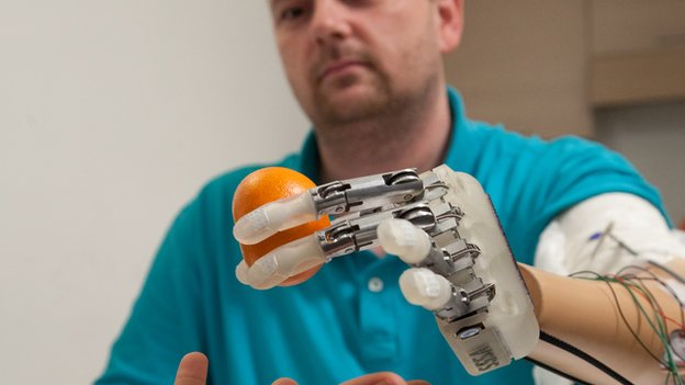 Bionic hand manufactured allowing user to feel shape and texture