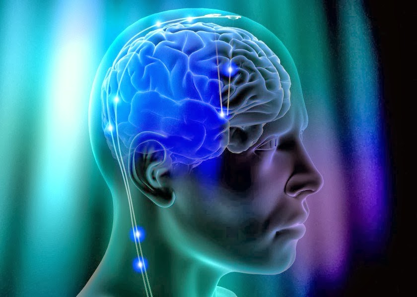 DARPA Seeks to Treat Memory Loss With Brain Implants
