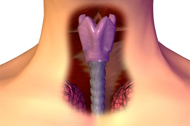 Campaign of pharynx cancer