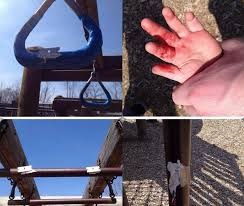 Razor Blades Glued to Playground Equipment Injure Toddler