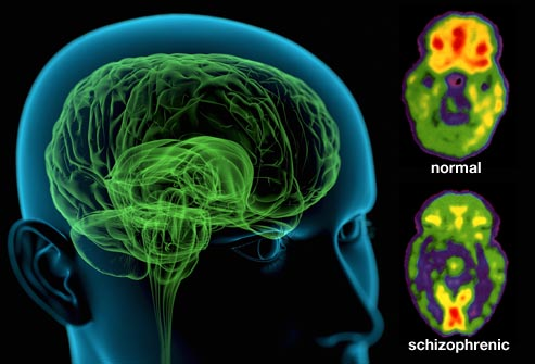 International team sheds new light on biology underlying schizophrenia
