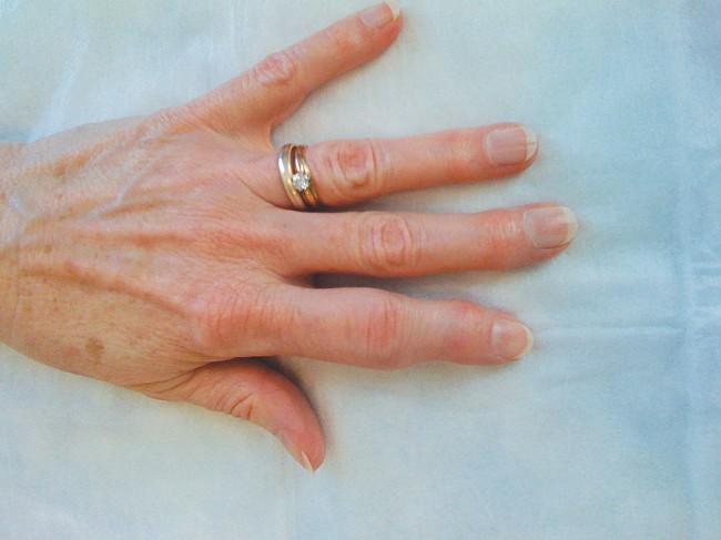 Psoriatic Arthritis Medication Otezla Approved By Fda