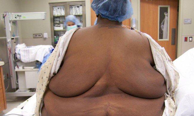 morbid obesity, obesity,