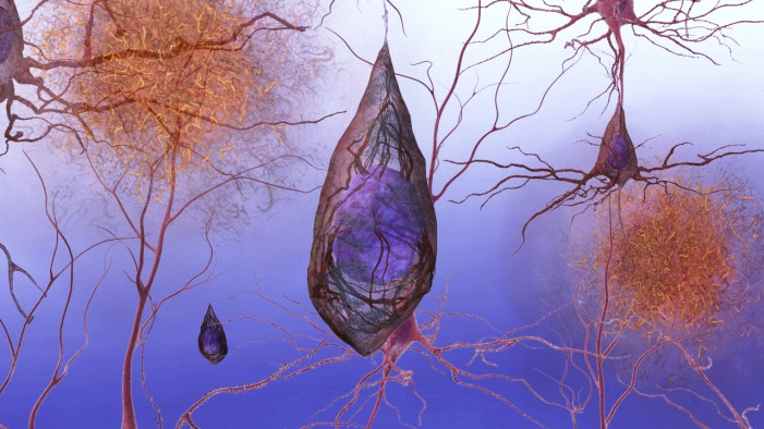 Alzheimer's Disease: Researchers Test Prevention Strategies