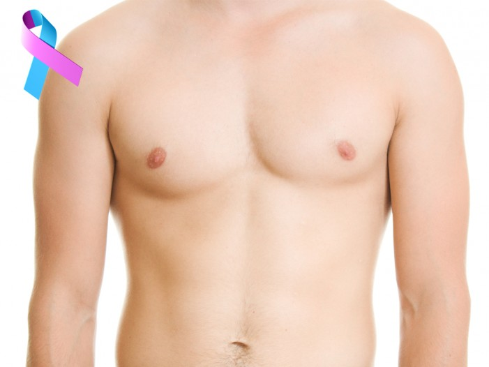 Breast Cancer in Males