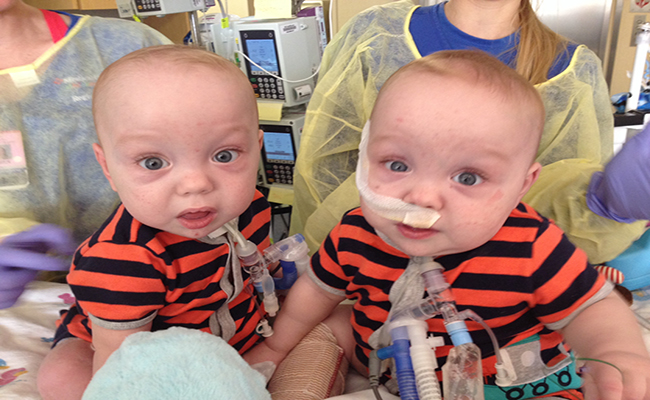 Conjoined Twins Separated And Finally Leaving Hospital Guardian