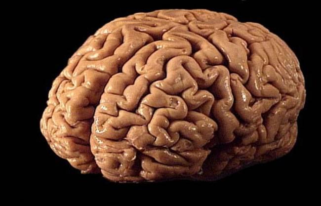 diabetes brain
