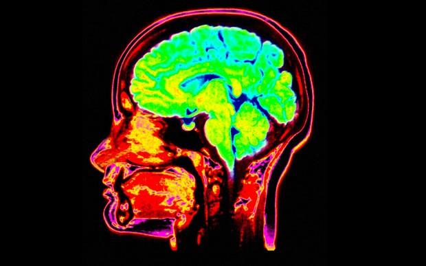 Basic Mechanisms Underlying Seizures and Epilepsy - An ...