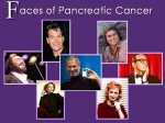 Pancreatic Cancer is Known by Famous Faces