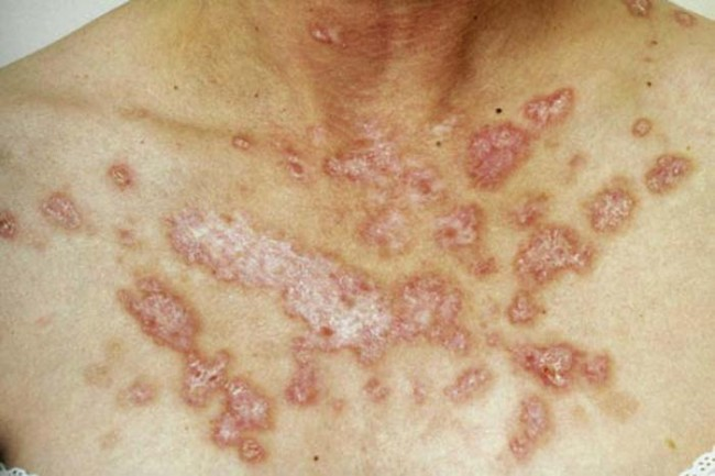 Lupus FDA