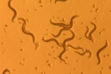 Insulin Receptor Gene Found to Be Necessary for Worms to Learn