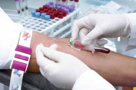 Scientists Acknowledge Blood Test Might Predict Alzheimer's Disease