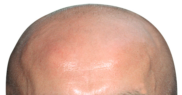 New Cures for Baldness