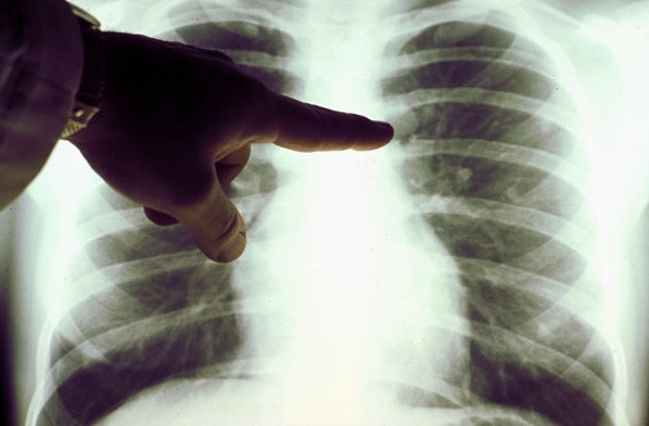 People Can Have Lung Cancer for 20 Years Before They Know It