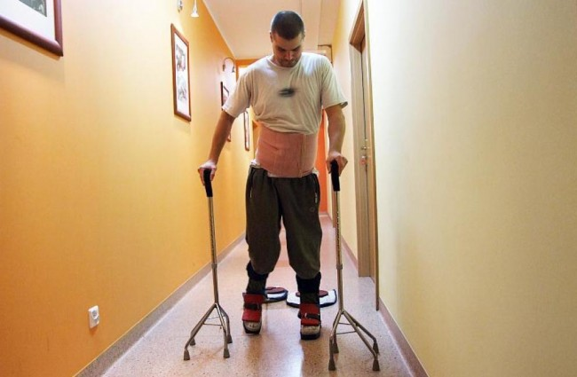 Spinal Cord Injury Patient Recovery May Give Hope To