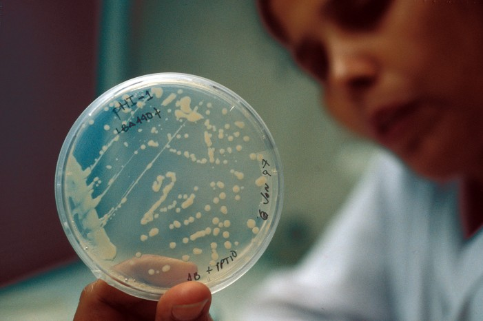 'Superbug' Exposure at UCLA Medical Center