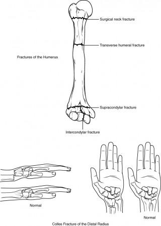 Pain Management Bone Fractures