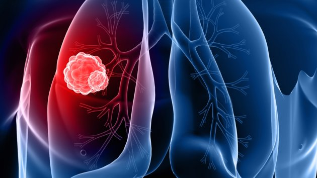 5 Symptoms and Warning Signs of Lung Cancer
