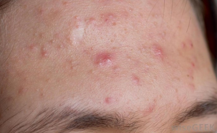Understanding Acne and Rosacea